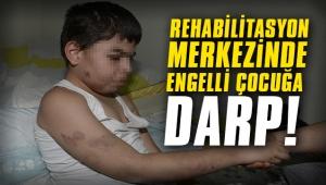 Rehabilitasyon merkezinde engelli çocuğa darp!
