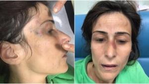 Eşini darbeden doktora hapis cezası