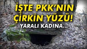 İşte PKK'nın çirkin yüzü! Yaralı kadına...