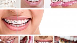 Diş teli ile ilgili doğru bilinen 7 yanlış!