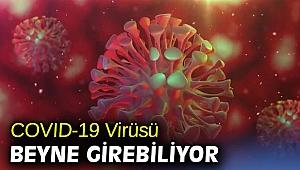 COVID-19 Virüsü Beyne Girebiliyor